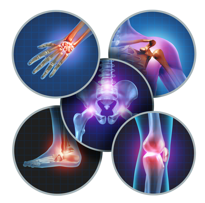 What do Rheumatoid Arthritis and Osteoarthritis have in common? Pain!